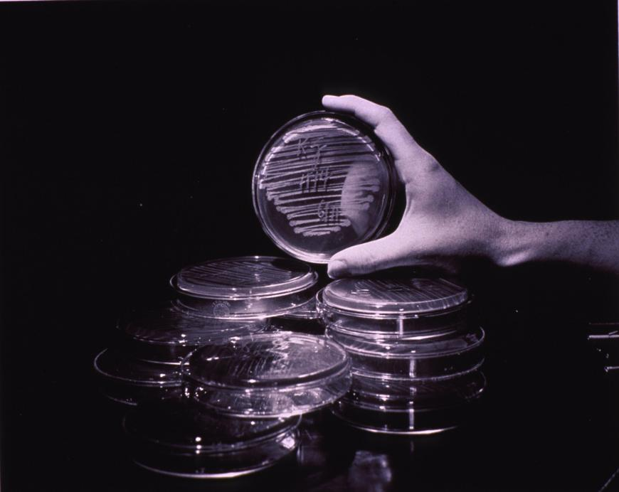 cold_virus_research_petri_dishes_4645106902